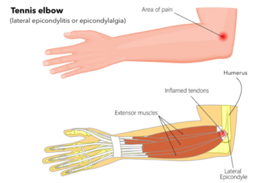 Natural Ayurvedic Home Remedies for Tennis Elbow (Tendonitis)