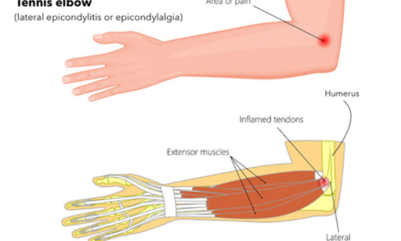 Natural Ayurvedic Home Remedies for Tennis Elbow (Tendonitis)
