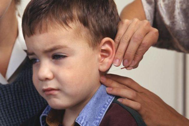 Acupuncture For Autism