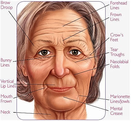 Wrinkle Erasing lines with Acupuncture