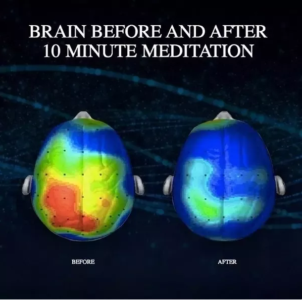 Here's What 10 Minutes of Meditation a Day Does to Your Brain