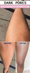 Blackheads on Legs