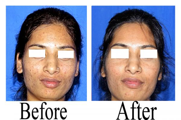 women face acne clean before and after use