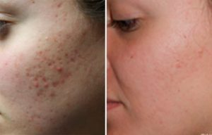 Before and After women testimonial