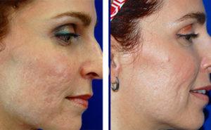 Banish Acne Scars