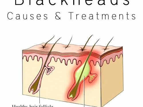 How To Get Rid Of Blackheads – 13 Ways