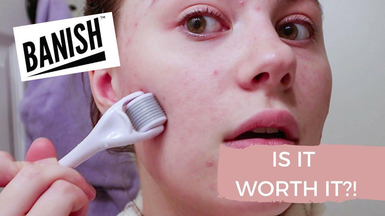 Banish acne scars is it worth it ?