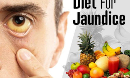 All About Jaundice Diet
