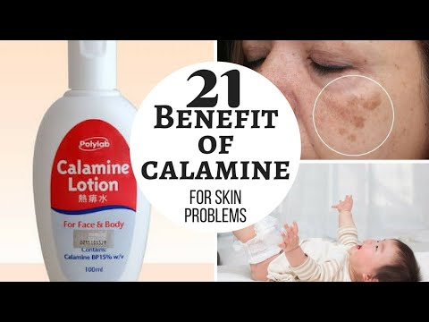 Lacto calamine side effects