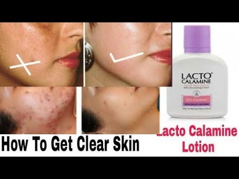 Lacto calamine uses