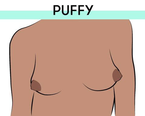 Everything You Ever Wanted to Know about Puffy Nipples