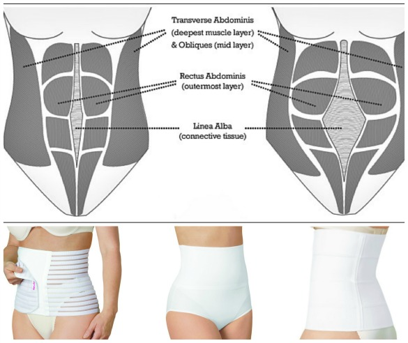 When to Start Wearing Abdominal Belt After C Section?