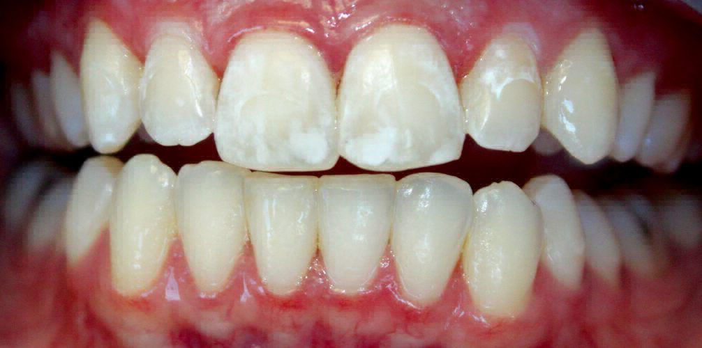 Comprehensive Information on White Spots On Teeth