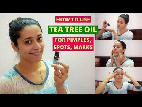 How To Use TEA TREE OIL For PIMPLE, ACNE, PIMPLE SPOTS, BLEMISHES | Just another girl