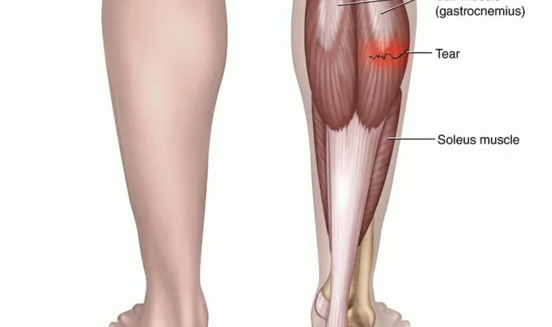 How Long Does It Take For A Torn Calf Muscle To Heal?