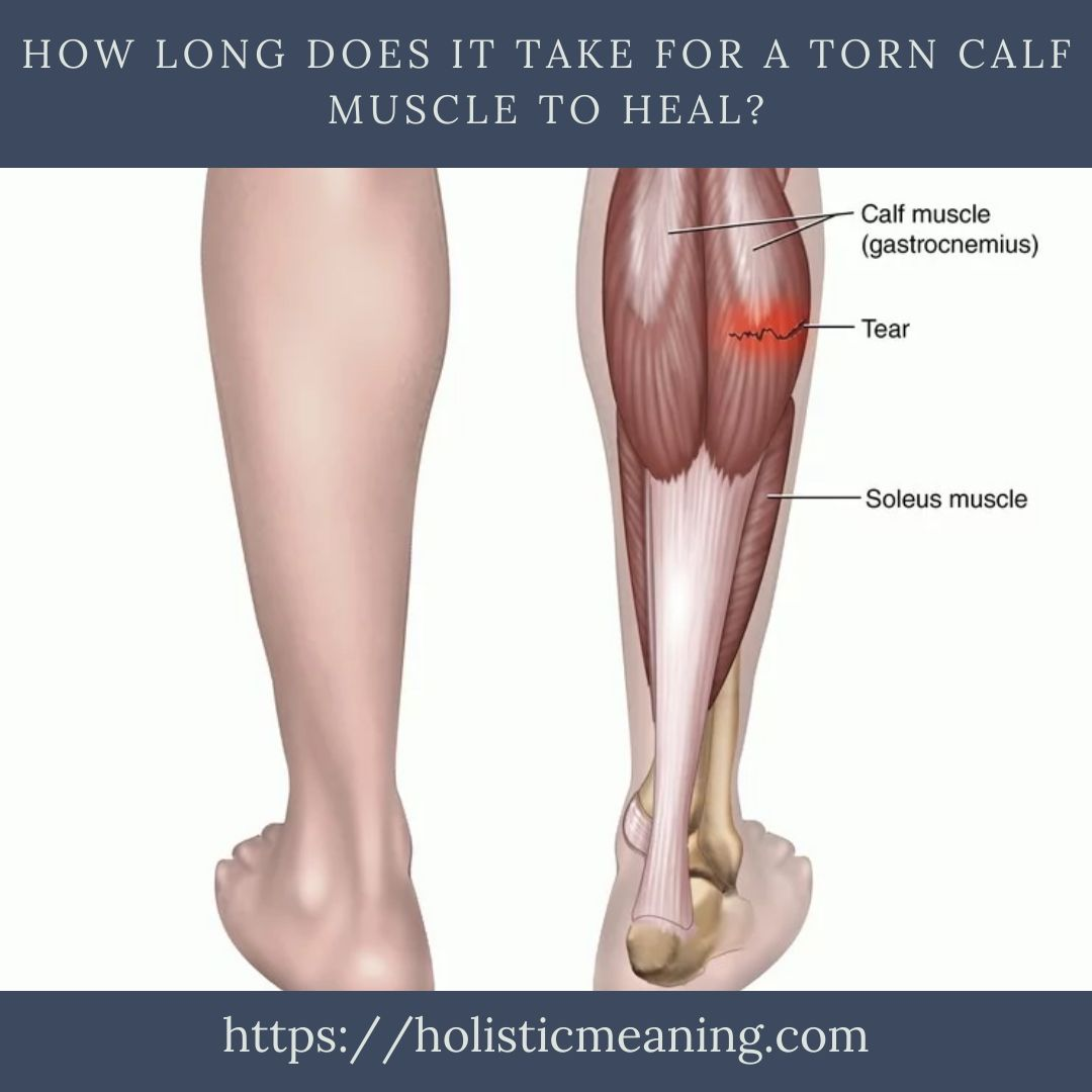 How Long Does It Take For A Torn Calf Muscle To Heal_