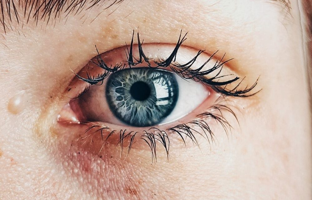How To Prevent Hormonal Acne?