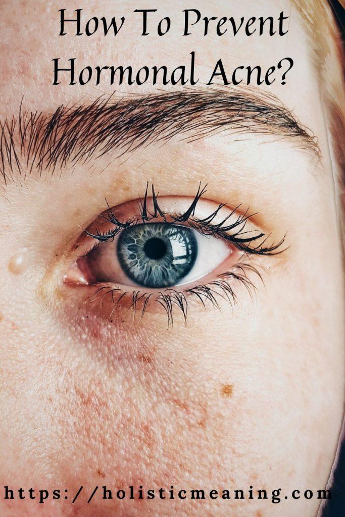 Como prevenir a acne hormonal
