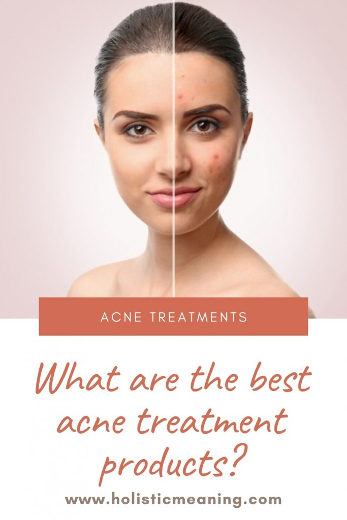 What are the best acne treatment products