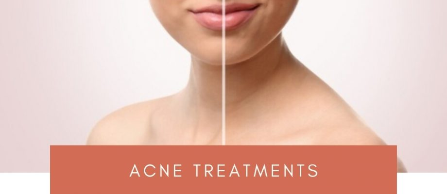 What are the best acne treatment products?